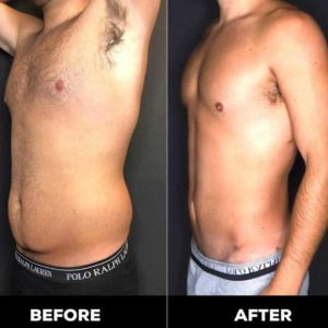 man before and after in-office liposuction treatments bowling green