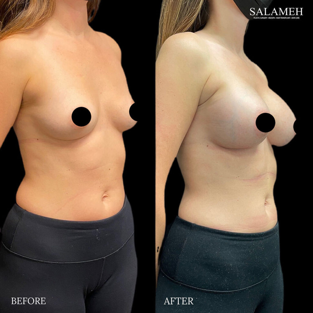 woman before and after breast augmentation bowling green