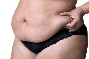 woman pinching big belly