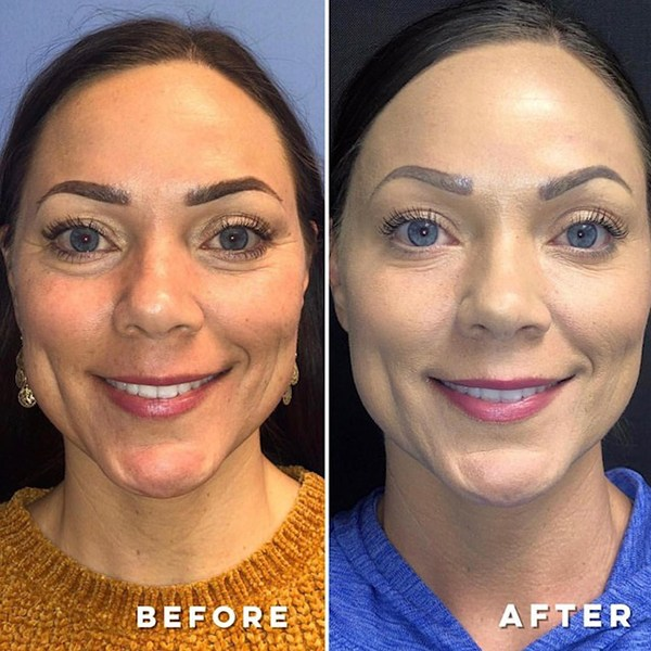 woman achieve radiant skin after dysport botox treatment bowling green