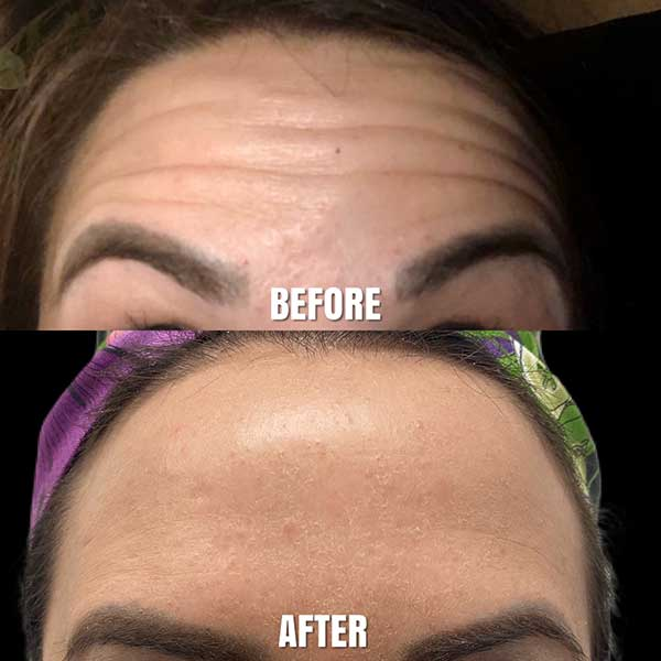 smooth out fine lines and wrinkles after botox treatment