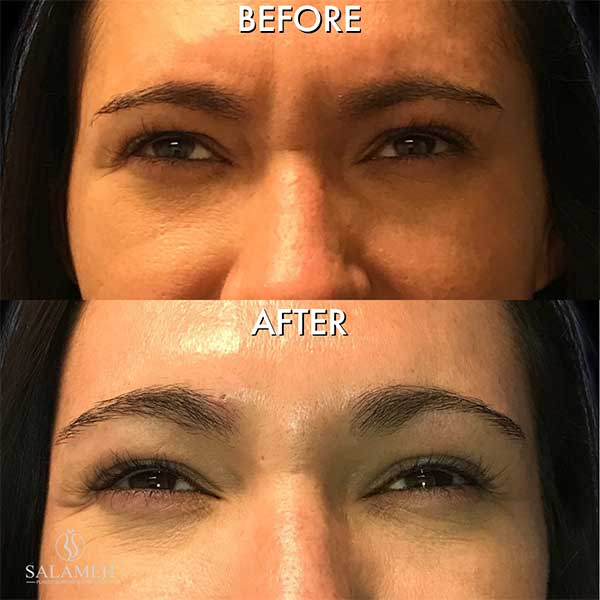 woman before and after botox treatment bowling green