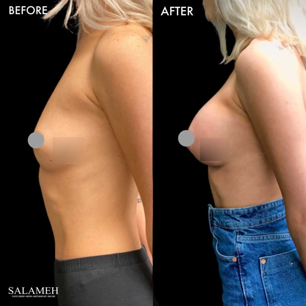 bowling green augmentation result before after surgery