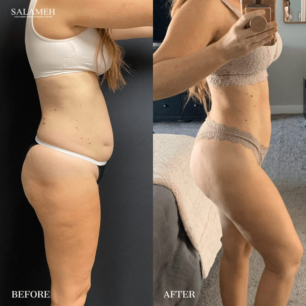 Before and after a brazilian butt lift