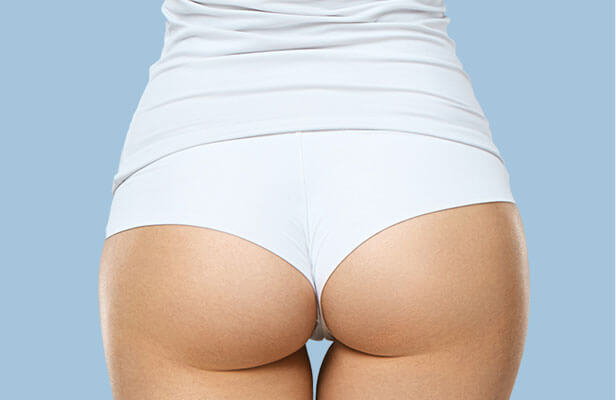 brazilian butt lift and 360 degree liposuction result
