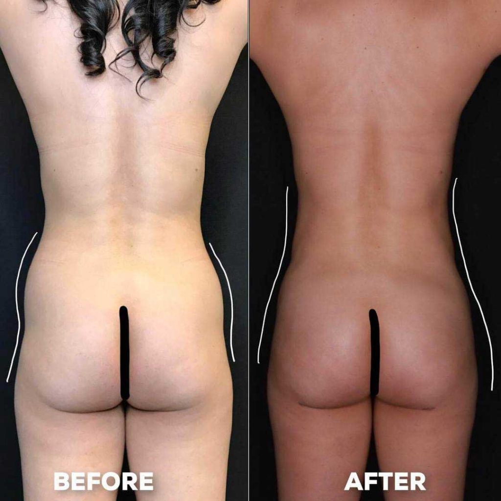 brazilian butt lift plastic surgery before and after