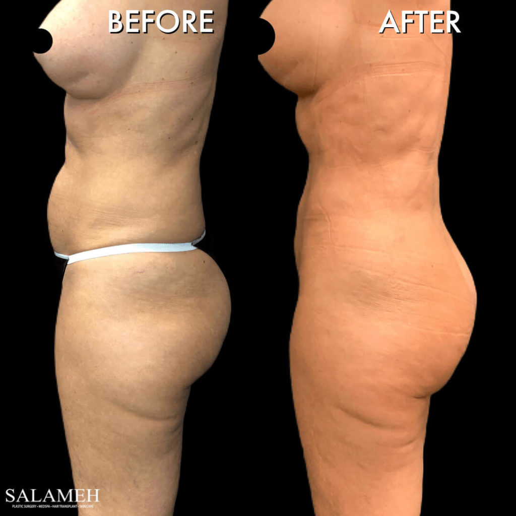 womans side view before and after brazilian buttock lift