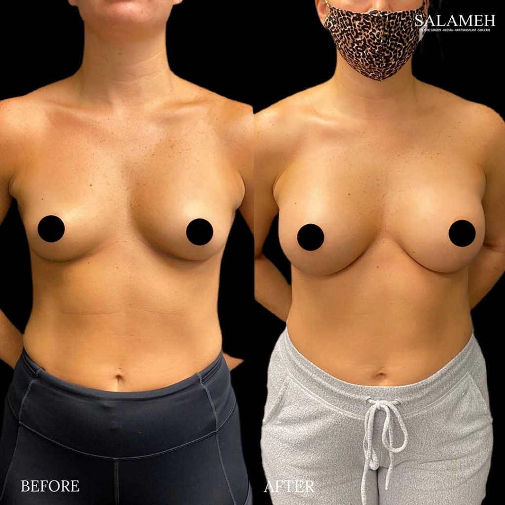 woman in mask before and after breast augmentation surgery