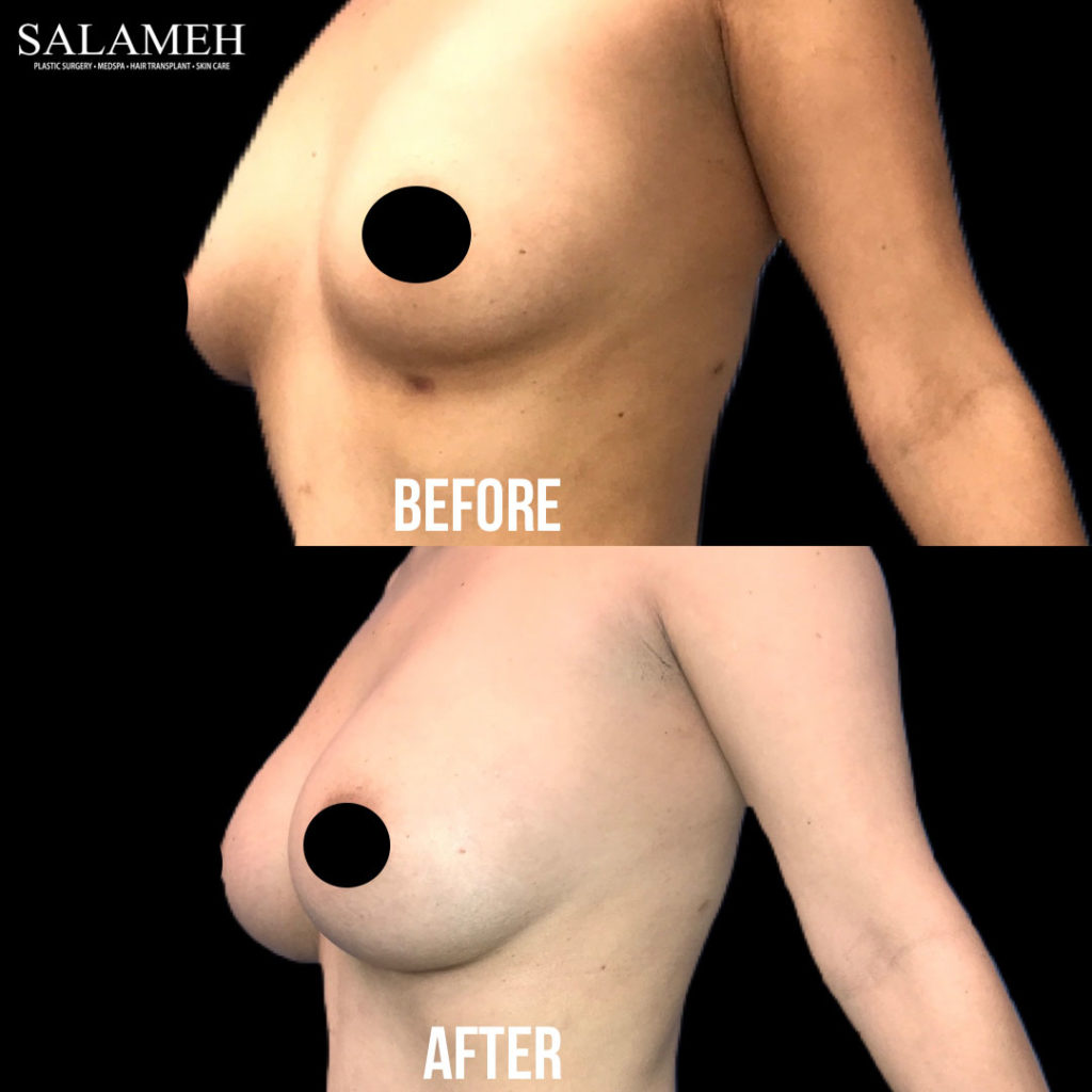woman result before and after breast augmentation surgery