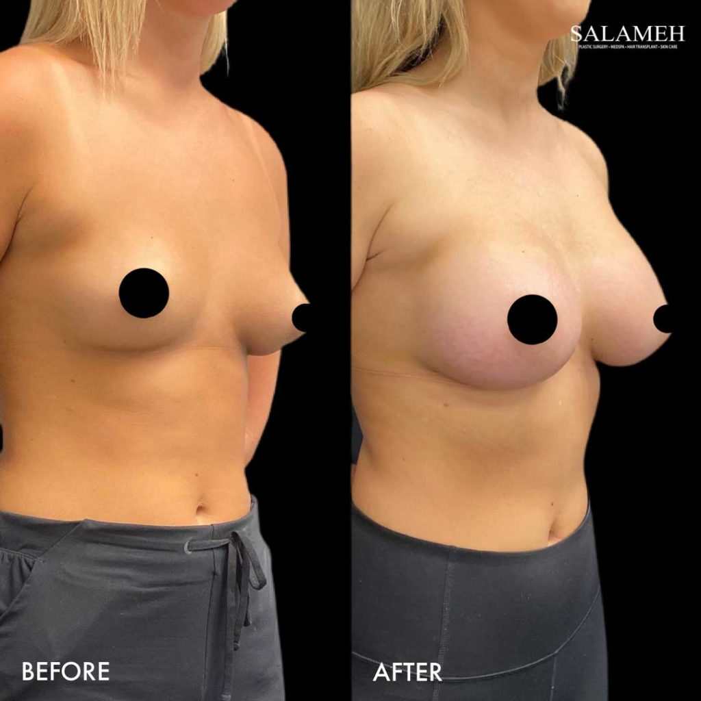 fully accredited AAAASF certified before and after breast augmentation procedure