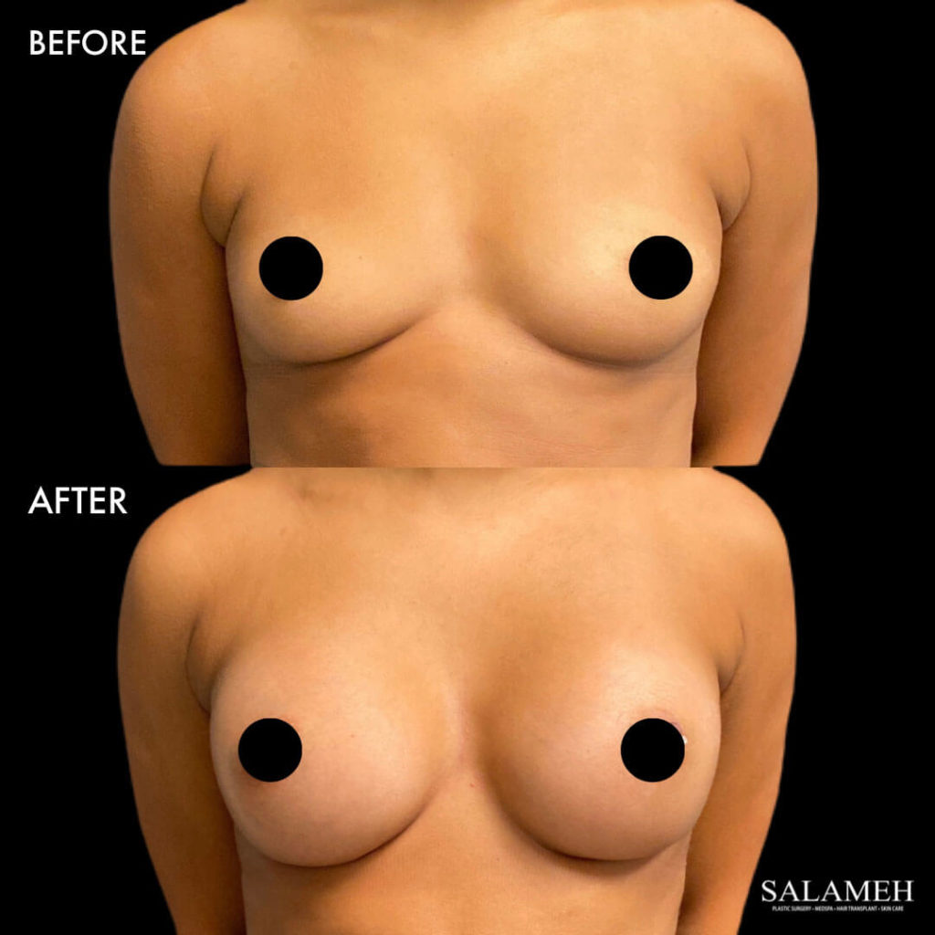 saline breast implant before and after procedure