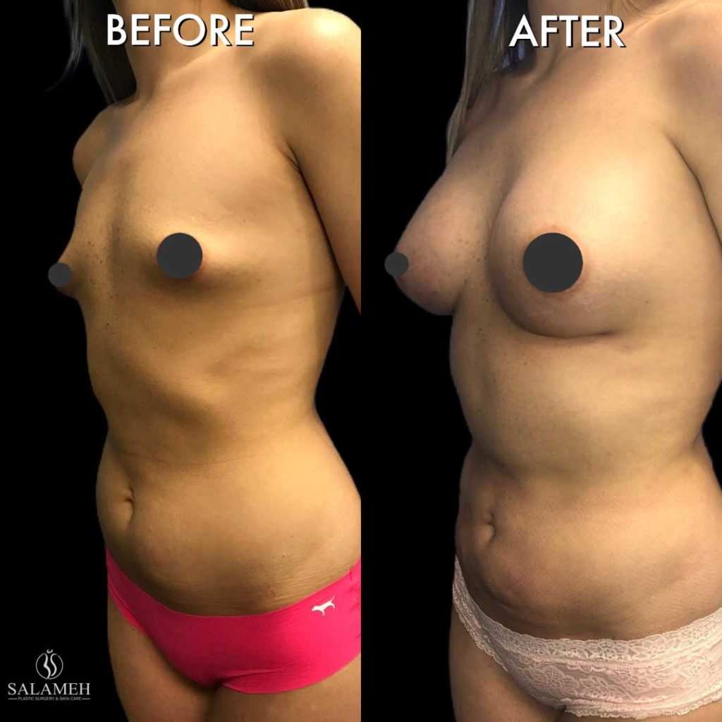 salameh plastic surgery breast augmentation before and after