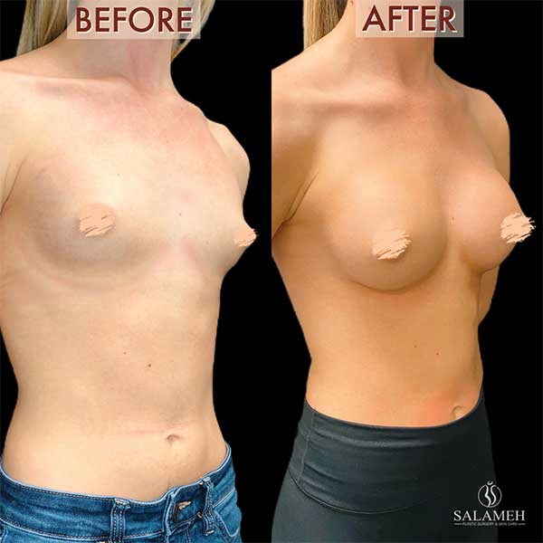 make smaller breasts appear larger after augmentation procedure bowling green