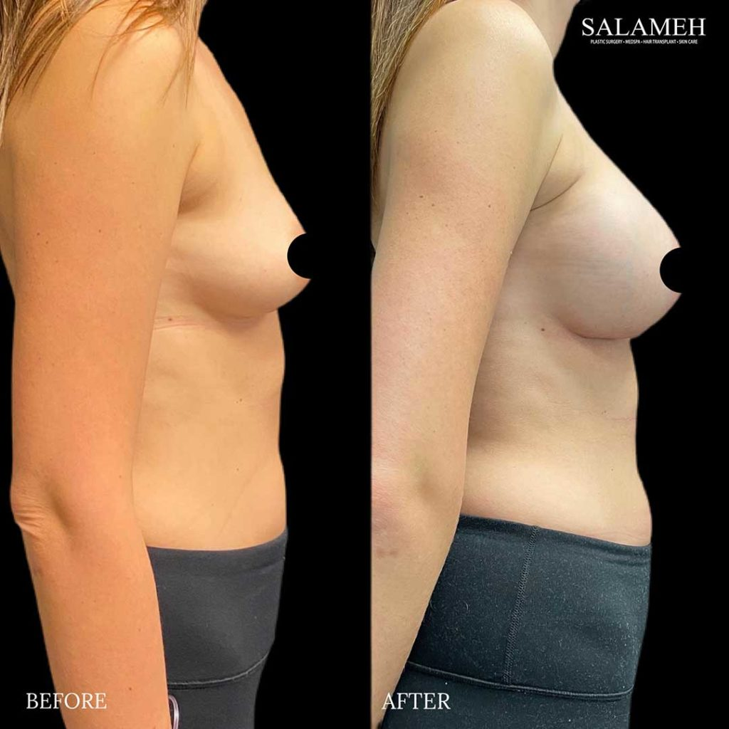 before and after breast augmentation procedure at salameh plastic surgery