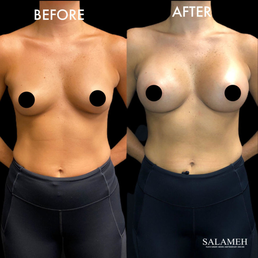 salameh plastic surgery before and after result for breast augmentation procedure