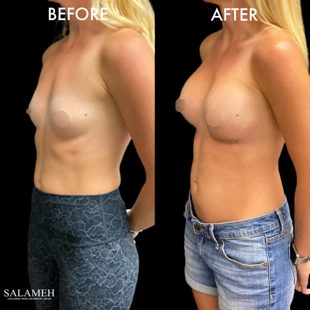result after breast augmentation surgery in bowling green