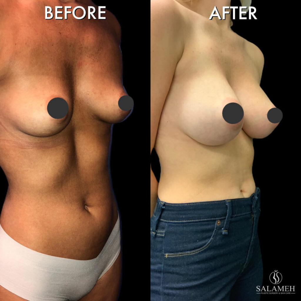 from small to bigger breast after plastic surgery