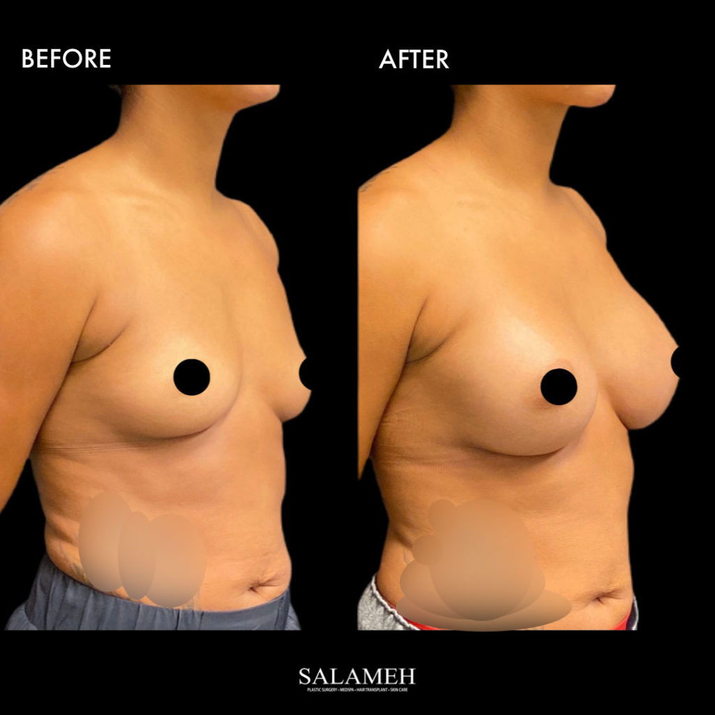 amazing flawless breast augmentation result in kentucky