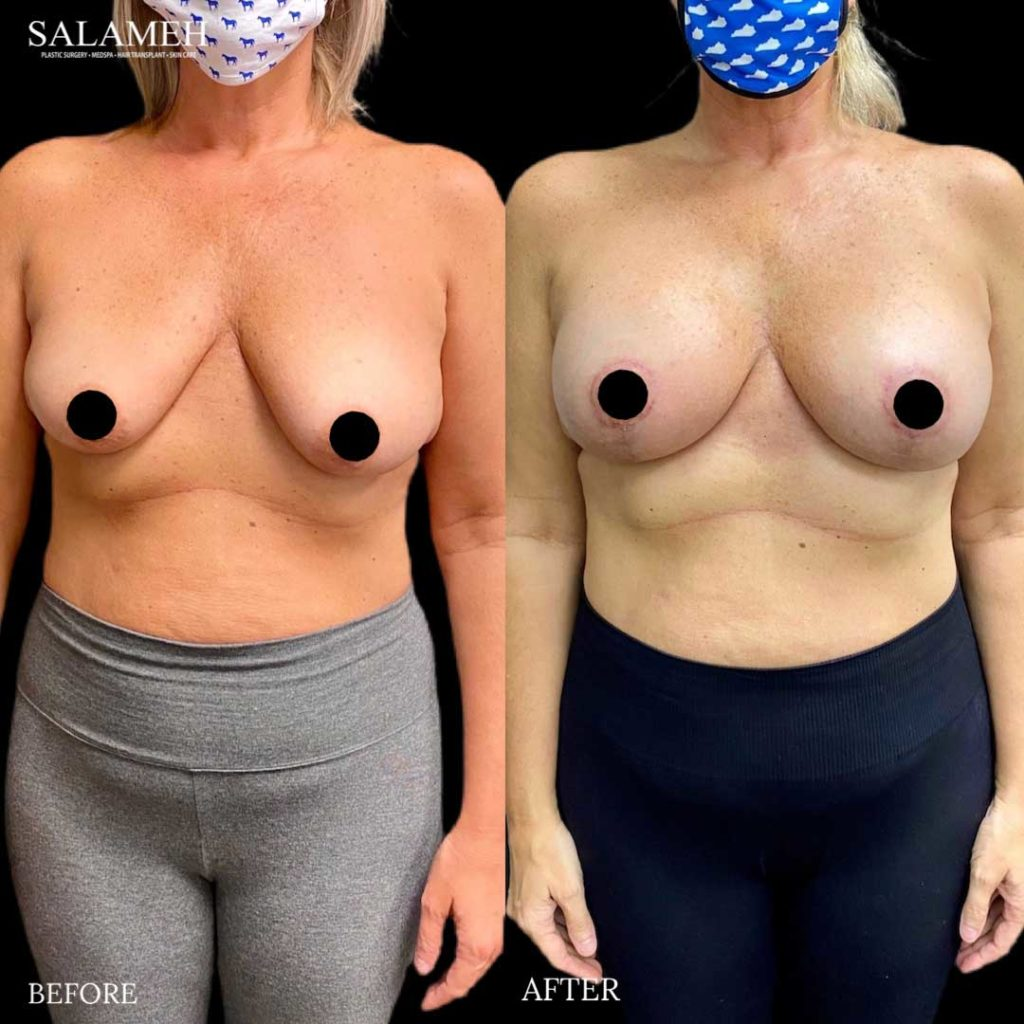 breast lift result before and after surgery