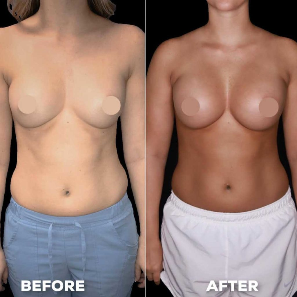 Midsection of Woman Before and After Breast Augmentation