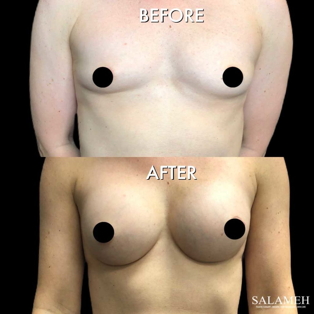 breast augmentation result before and after