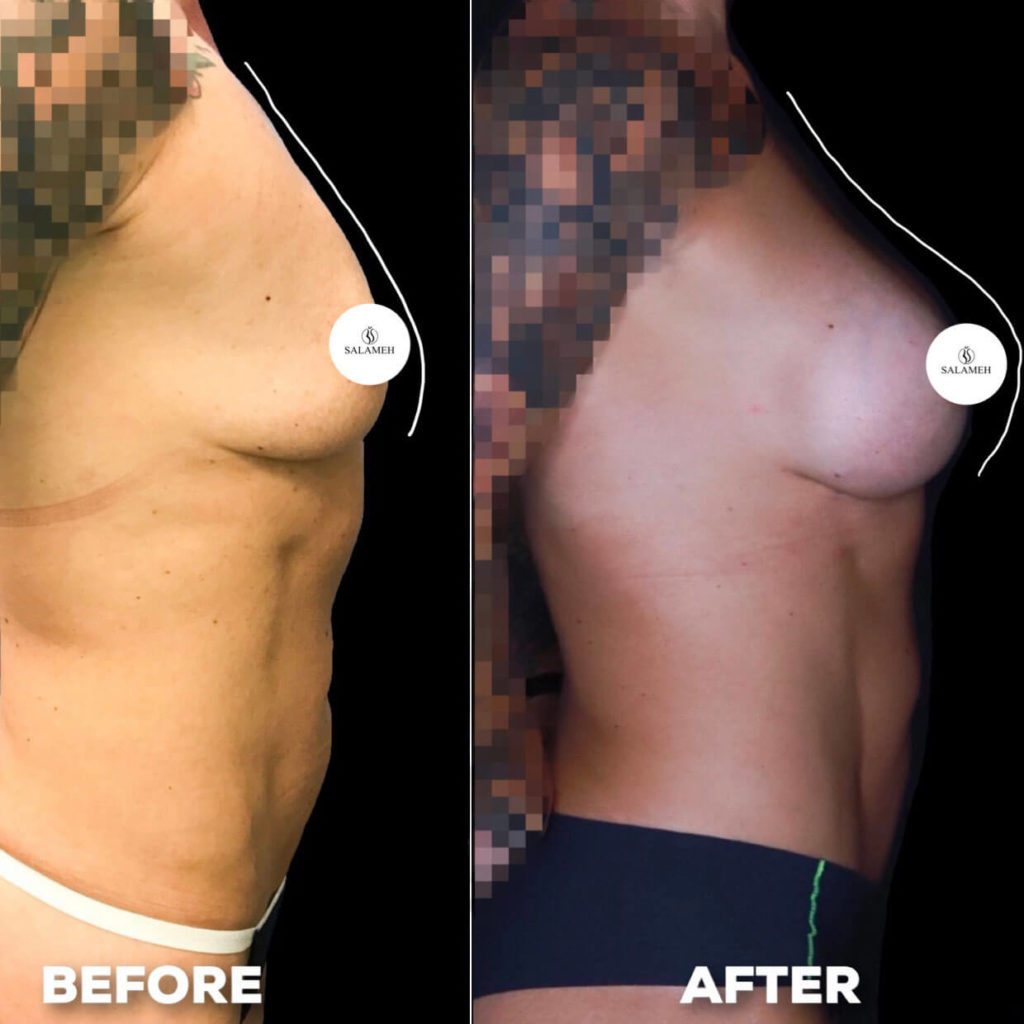 firm breasts after augmentation procedure