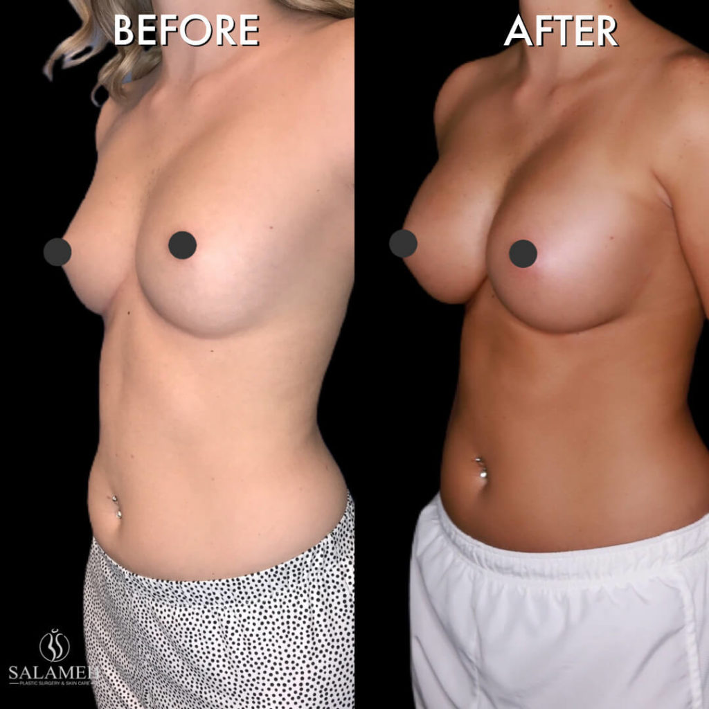 before and after cosmetic surgery -breast augmentation