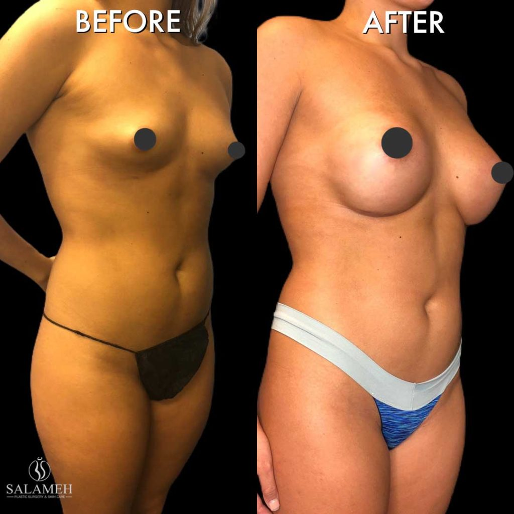 fullness of the breast after cosmetic surgery