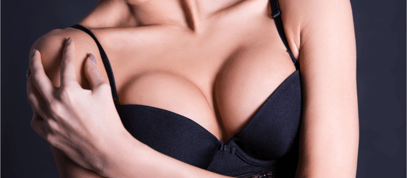 woman with crossed arms after breast lift