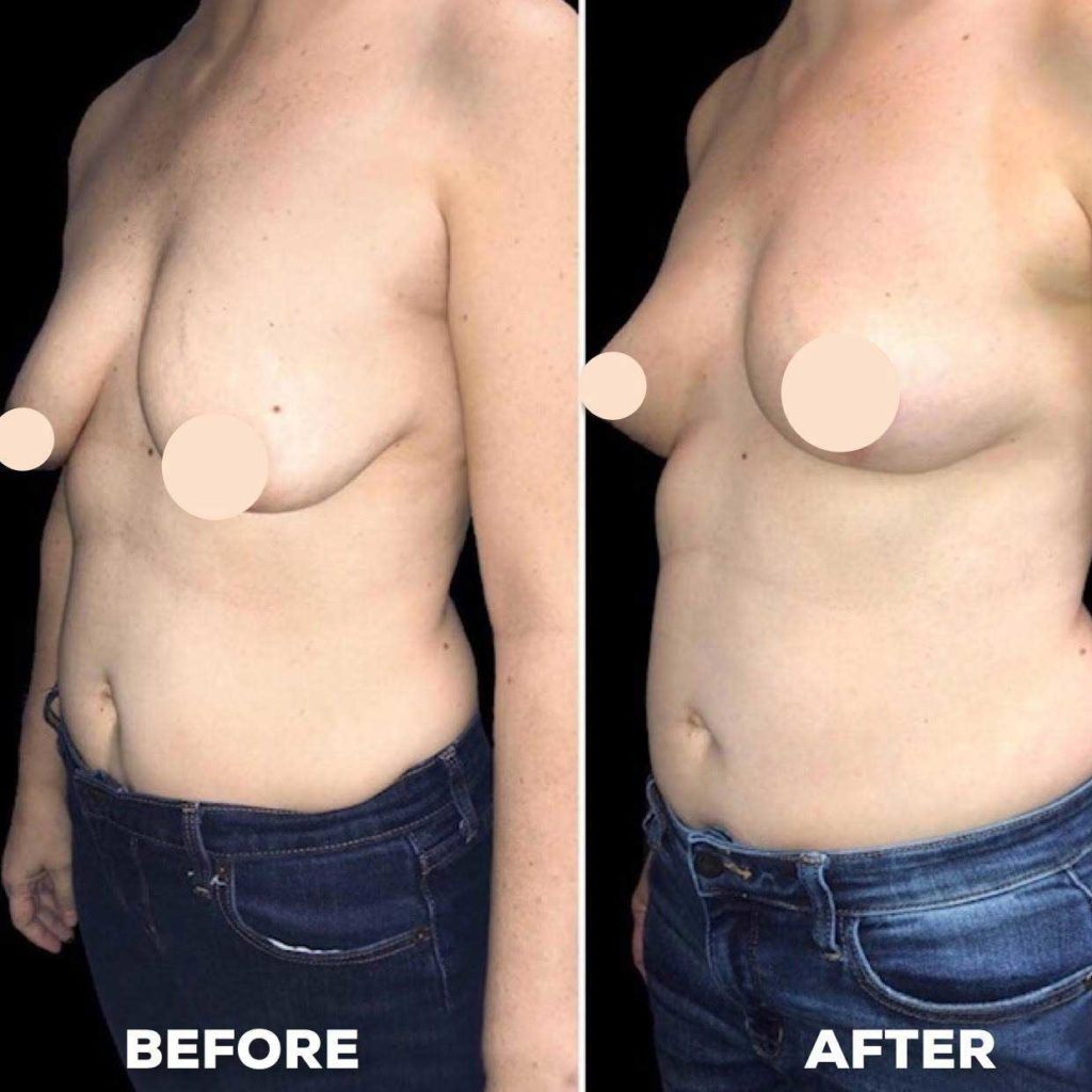 firmness in breasts after cosmetic surgery