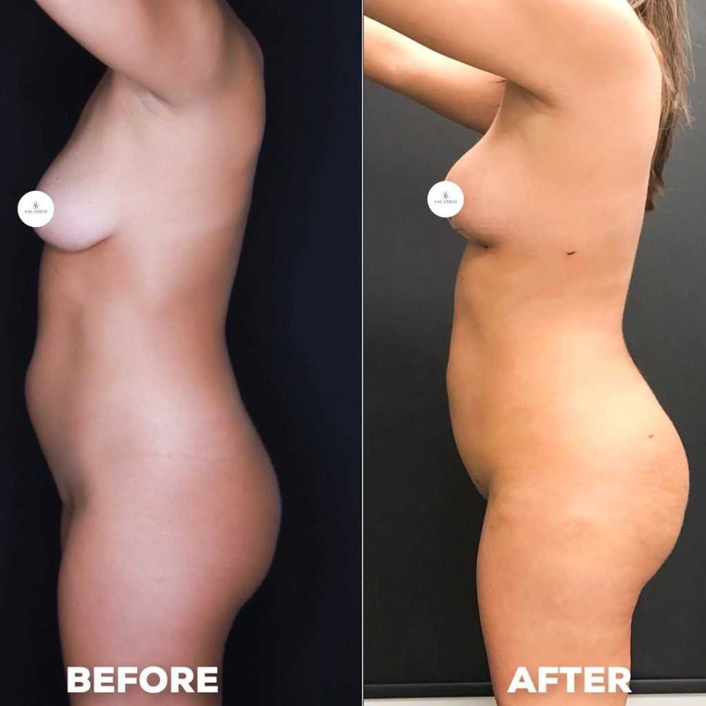 womans body profile before after breast lift