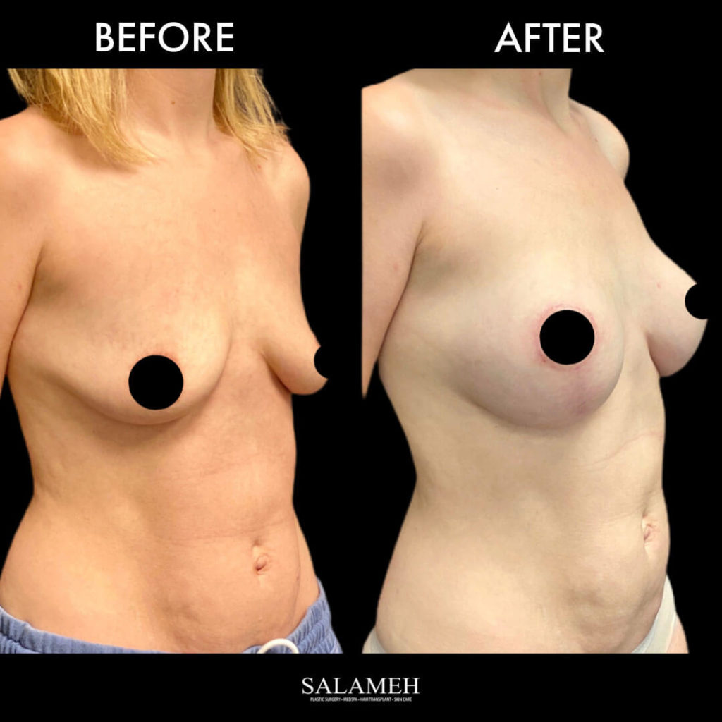 before and after results for breast lift cosmetic surgery