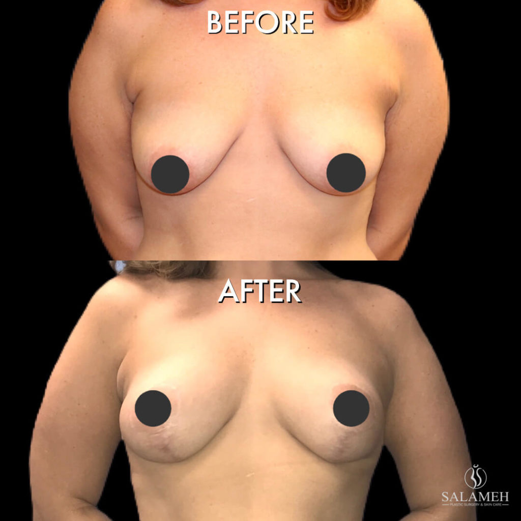 breast lift procedure before after bowling green ky
