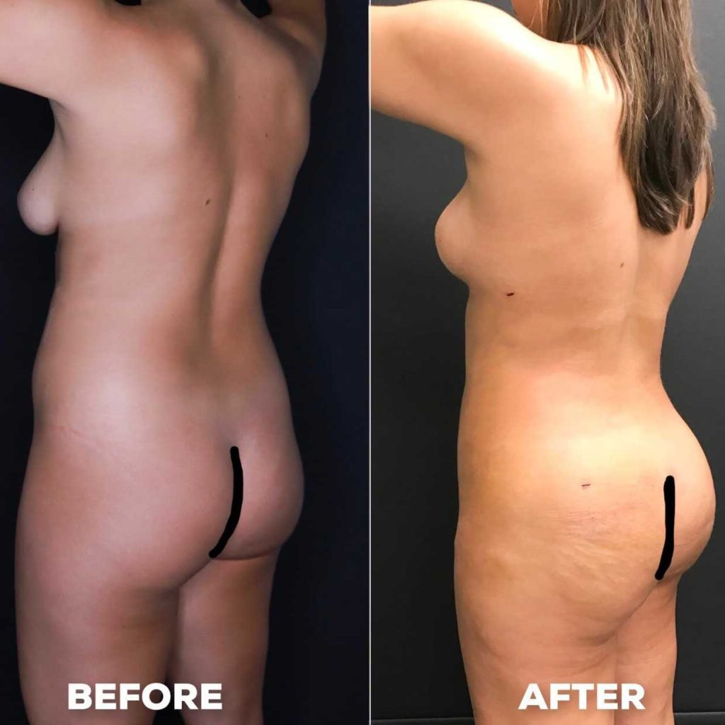 naked woman before and after cosmetic surgery