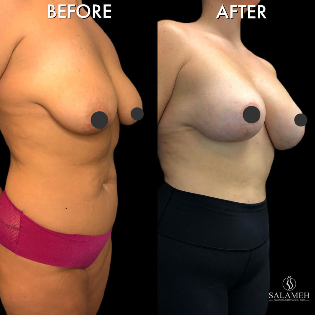 personalized breast lift in Bowling Green, KY