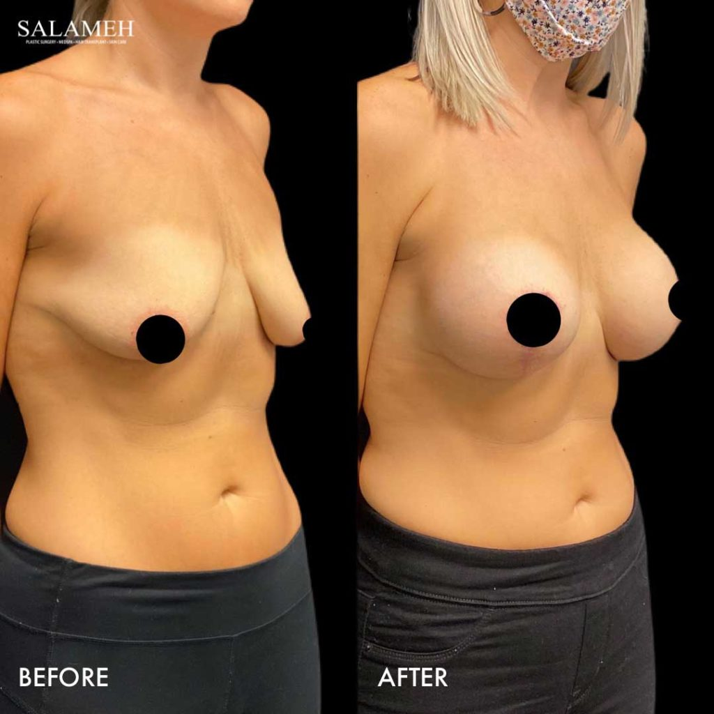 before and after breast lift cosmetic surgery