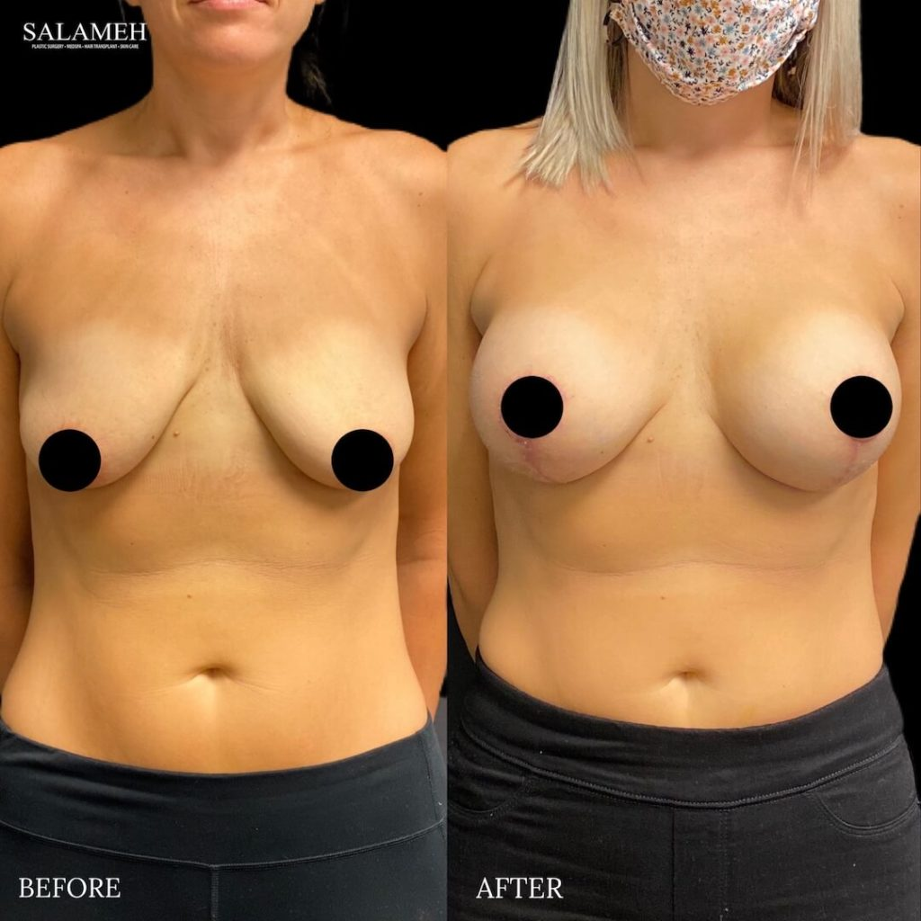 amazing breast lift result before and after