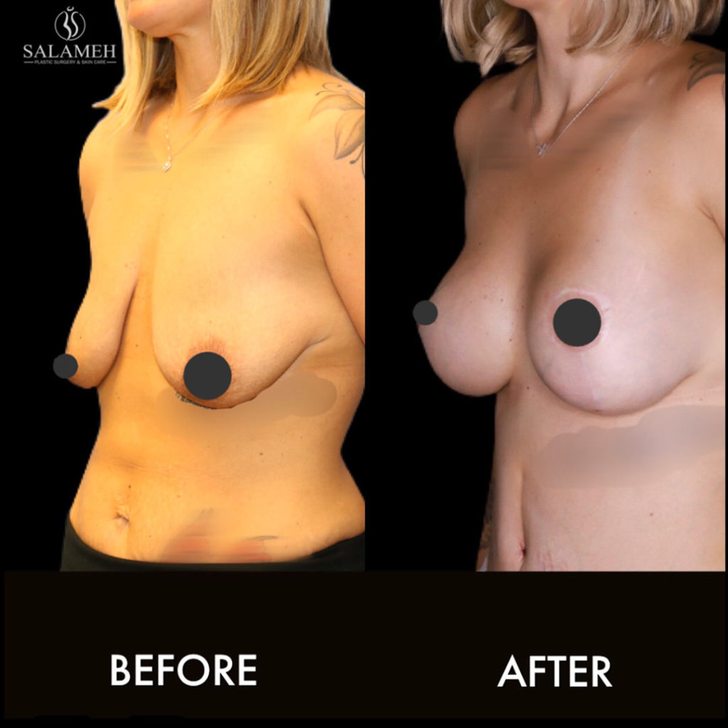 breast lift procedure before and after