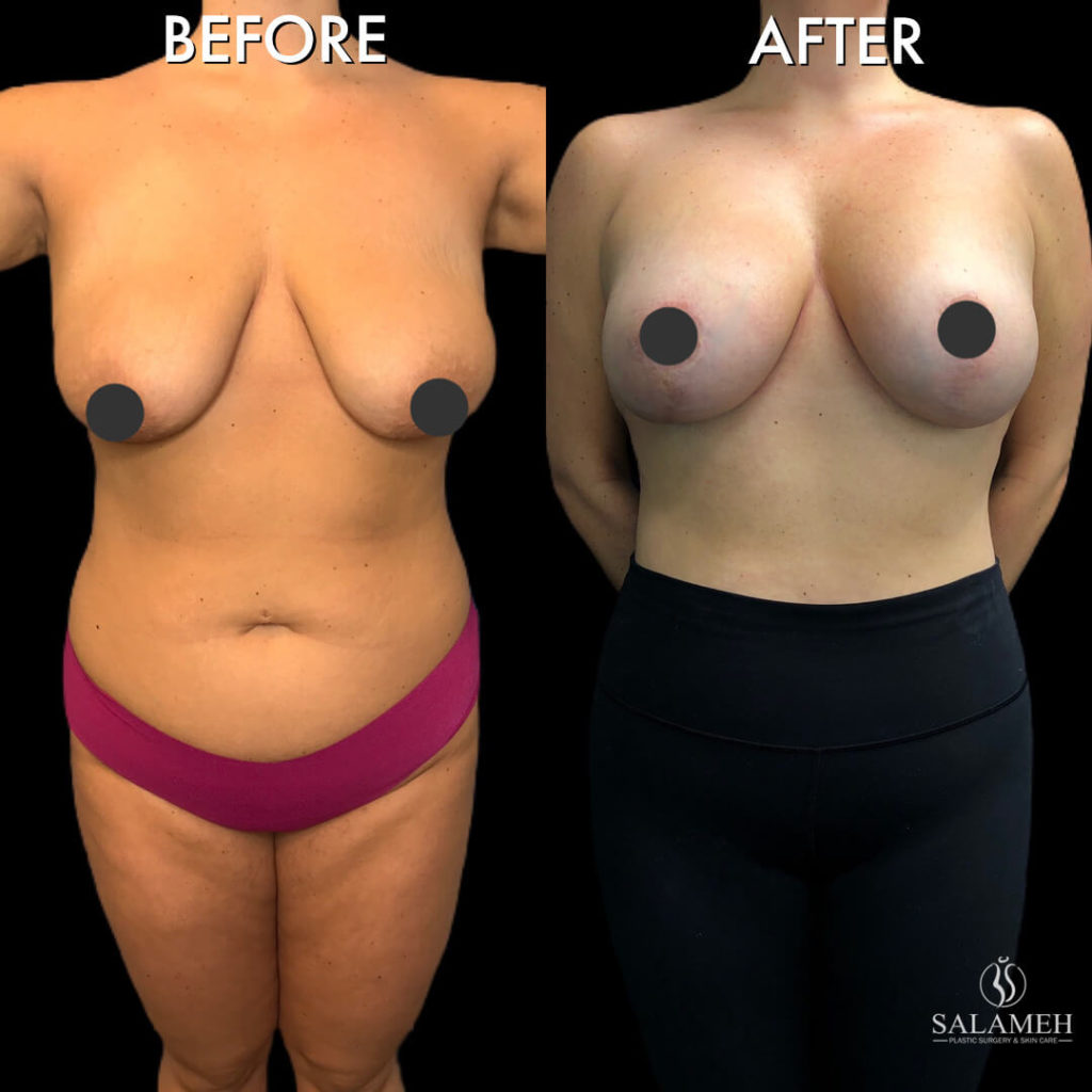 breast lift procedure before and after amazing result