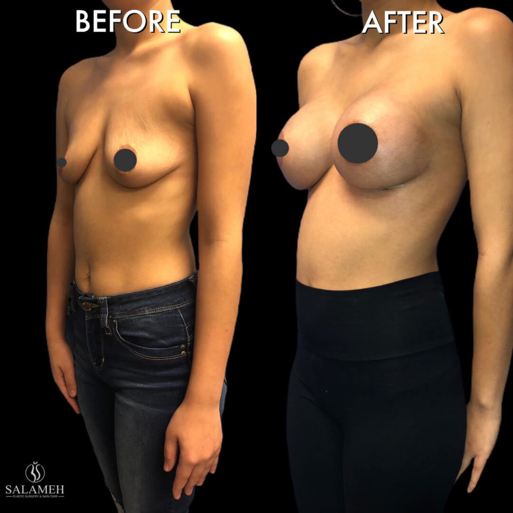 woman before and after cosmetic surgery