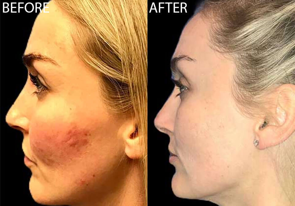 blonde woman profile before after acne treatment
