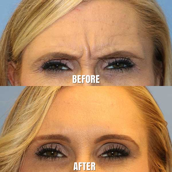 Woman's Forehead Before and After Botox