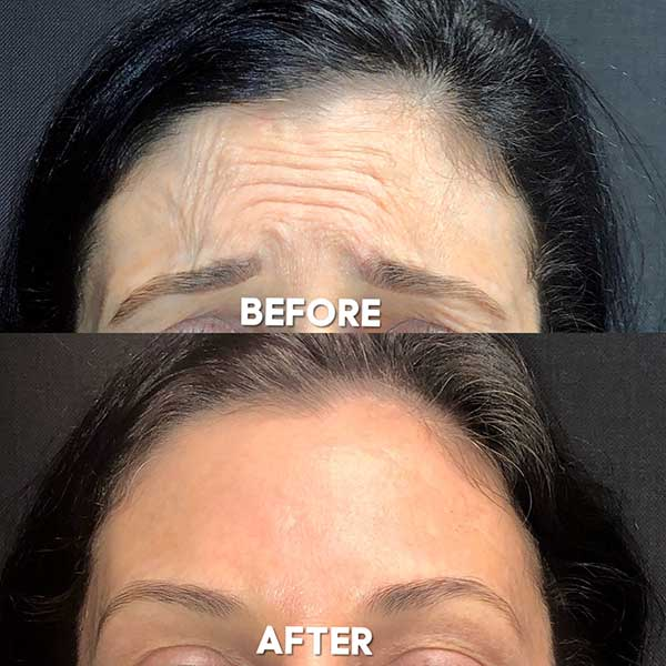 womans forehead before and after dysport botox treatment