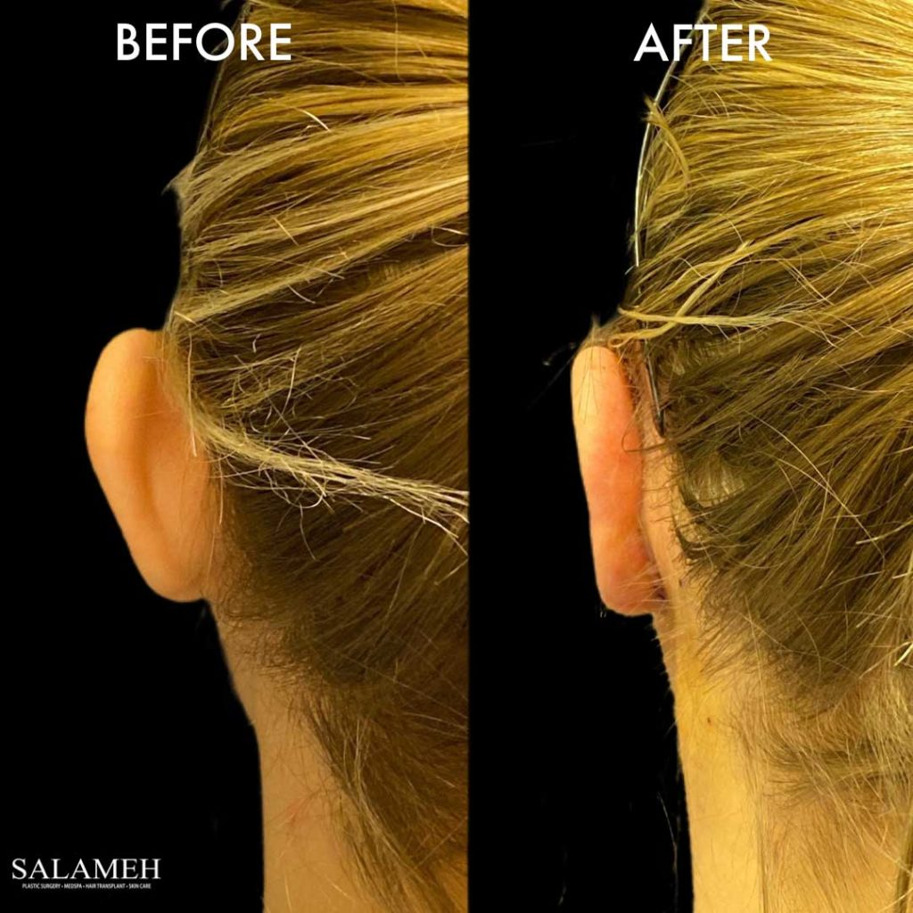 ear pinning result at salameh plastic surgery