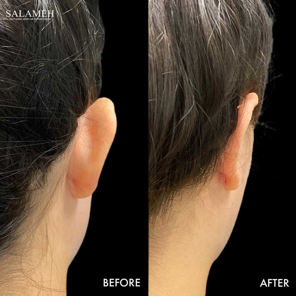 salameh plastic surgery ear pinning results