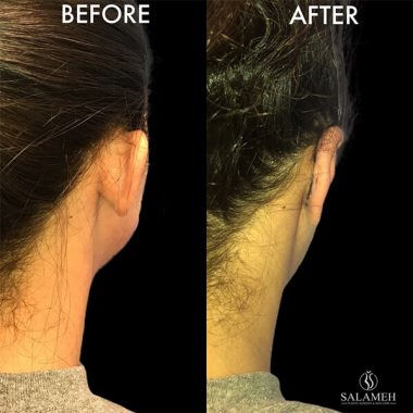 ear pinning surgery before and after