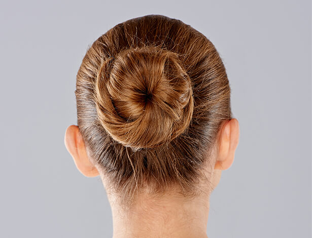 womans hair bunned after ear pinning surgery