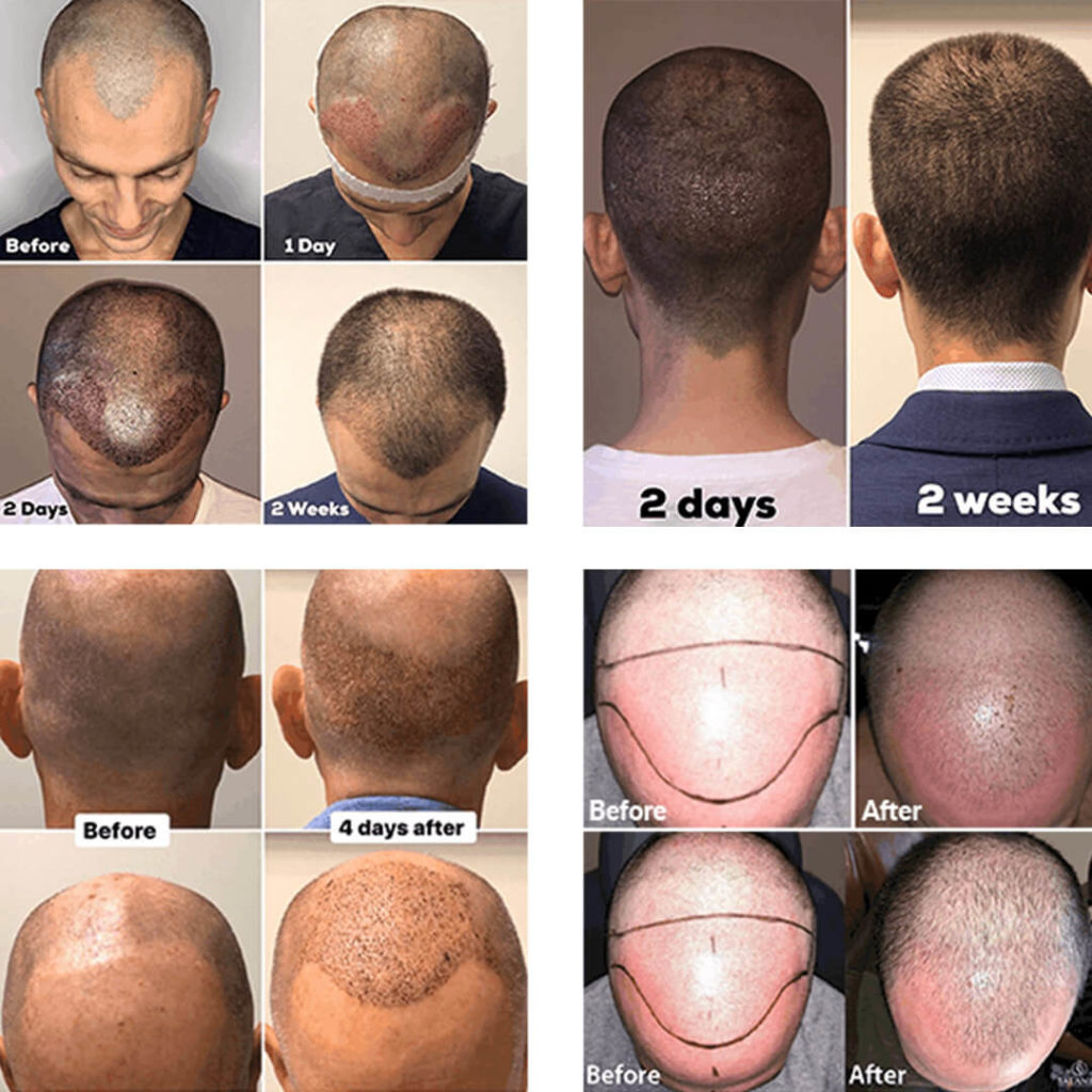 hair transplant journey before and after