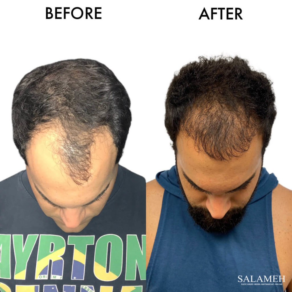 hair transplant result before and after surgery