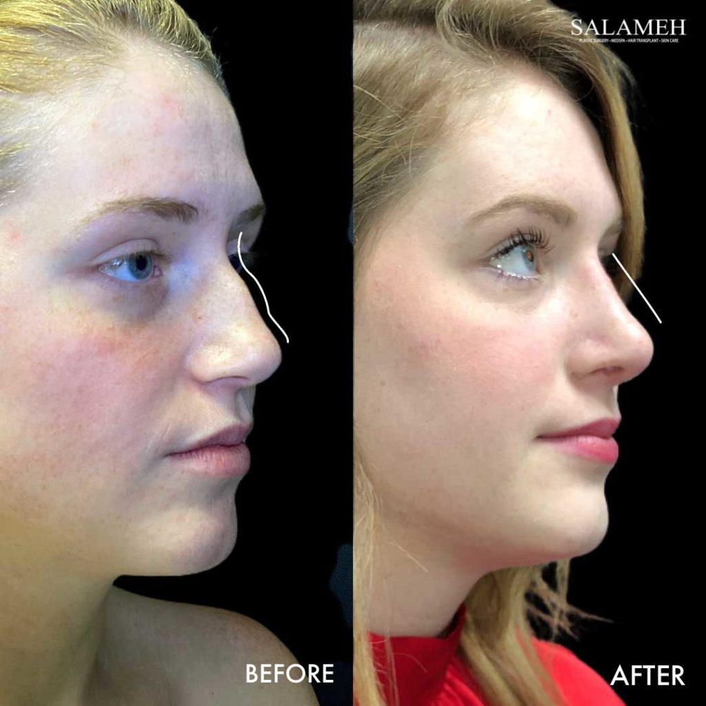 amazing result before and after rhinoplasty surgery